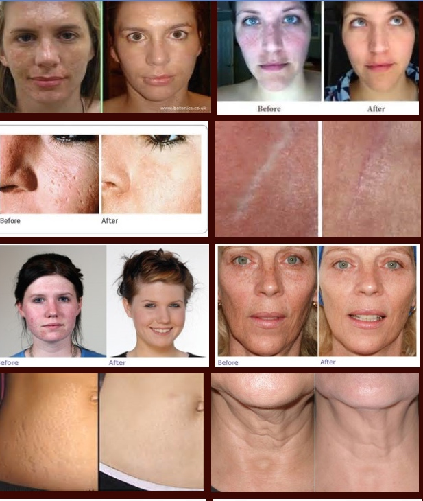 Before and After (Microneedling Treatments)